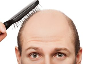 preview-full-how-to-prevent-hair-loss