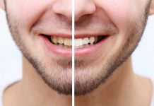 man showing before and after teeth whitening