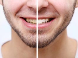 man who takes Progentra showing before and after teeth whitening
