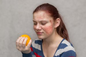 How to Manage and Treat Food Allergies