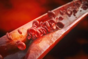 arterial cholesterol block